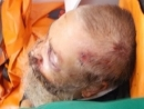Rabbi Brutally Beaten in Zhitomir, Ukraine: motive for the attack remains unknown