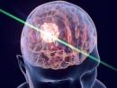 В Израиле впервые удалили опухоль мозга с помощью лазера