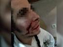 В Умани неизвестные с ножом напали на хасидов-подростков